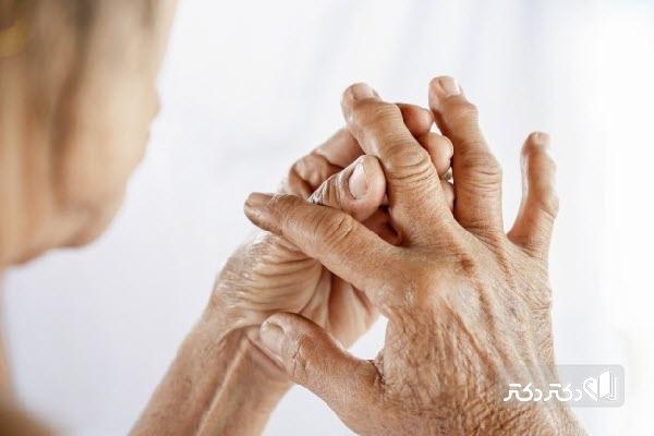 نقرس چیست؛ علت، علائم و راههای درمان نقرس