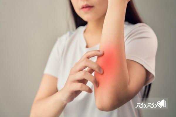 درمان گرفتگی عصب رادیال دست