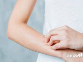 عامل بیماری درماتوفیتوز