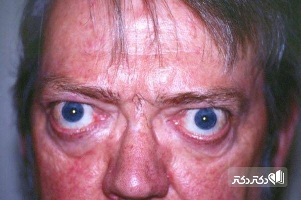 نشانههای بیماری گریوز چشمی