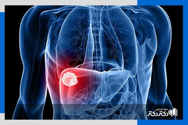 راه های کاهش بیلی روبین خون
