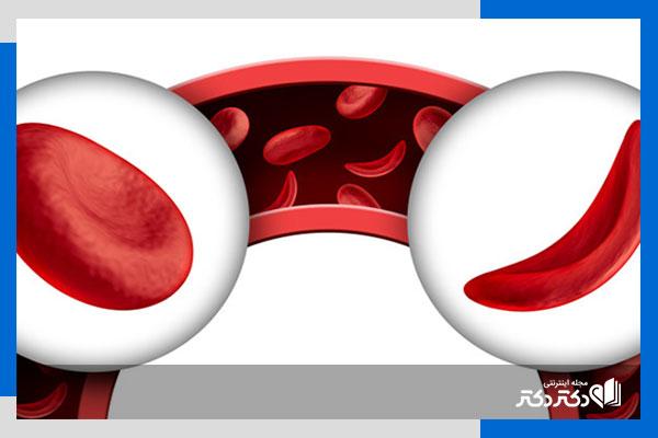 کم خونی داسی شکل چیست؟ علل، علائم و درمان کم خونی داسی شکل