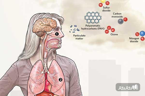 هوای آلوده چه بلایی بر سر مغز می آورد؟
